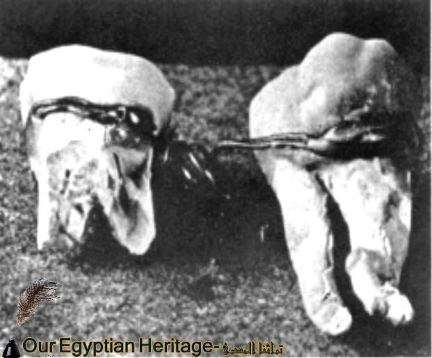 تقويم الاسنان فى مصر القديمة